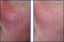 couperose behandeling Ermelo